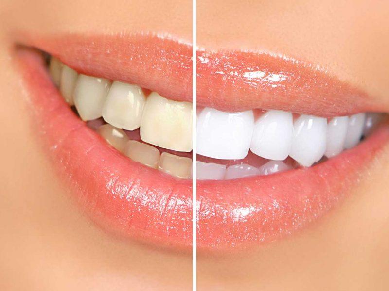 Diş Tedavilerindeki Kur Artışının Fiyat Etkileri