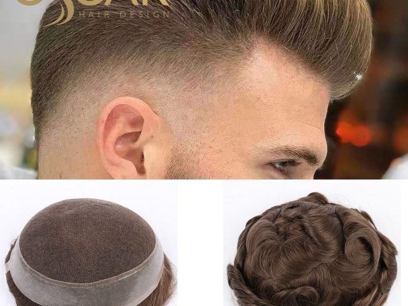 Kadın Protez Saç Uygulamaları Oscar Hair Protez Saç Merkezinde